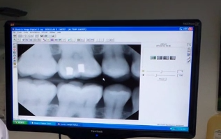 dental-xray-on-computer-screen